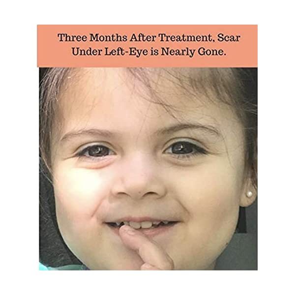 XScar Kids Silicone Scar Treatment with Vit C/E | Developed by a Dermatologist and a Plastic Surgeon | Safe to use on all ages, baby, toddler to teenager.