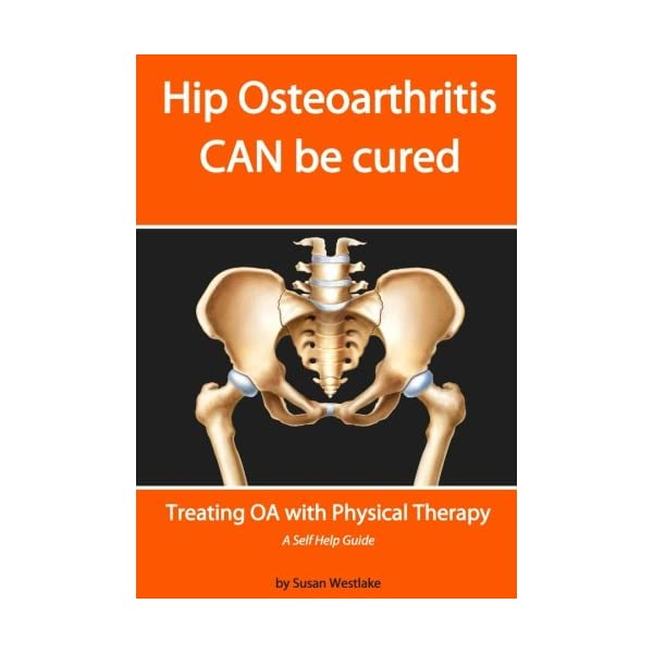 HIP Osteoarthritis CAN be Cured: Treating OA with Physical Therapy                         (Paperback)
