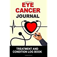 Eye Cancer: Journal Treatment and Condition Log Book