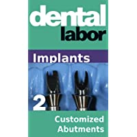 Customized Abutments (dental lab technology articles Book 26)