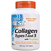 Doctor's Best Collagen Types 1 & 3 with Peptan, Non-GMO, Gluten Free, Soy Free, Supports Hair, Skin, Nails, Tendons & Bones, 1000 Mg, 540 Tablets