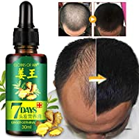 Ofanyia Ginger Germinal Oil Hair Growth Essential Oil Hair Loss Treatment For Thicker Dense Hair Care For Men And Women (1Bottle)