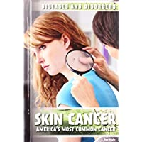 Skin Cancer: America's Most Common Cancer (Diseases & Disorders)