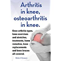 Arthritis in knee, osteoarthritis in knee. Knee arthritis exercises and stretches, treatments, home remedies, knee replacements and knee braces all covered.