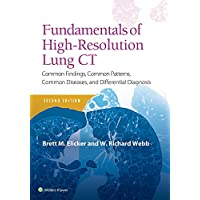 Fundamentals of High-Resolution Lung CT: Common Findings, Common Patterns, Common Diseases and Differential Diagnosis (Pocket Notebook)