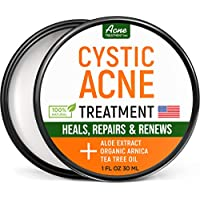 Cystic Acne Treatment and Acne Scar Remover - Effective Face & Body Severe Acne Cleanser with Tea Tree Oil - Made in the USA - Prevent Future Breakouts - Acne Spot Pimple Cream - 1 fl.oz